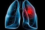 New trial against lung cancer reduced the risk of death by 43%